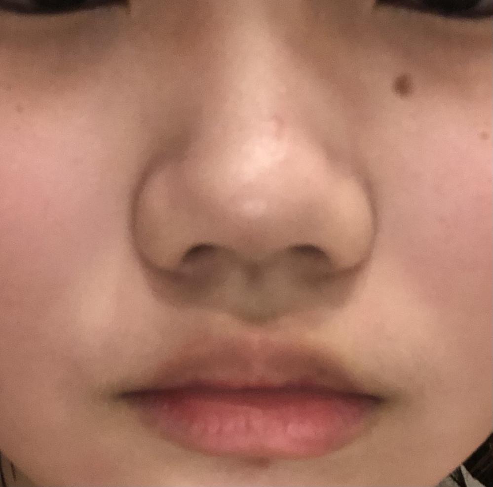 鼻がコンプレックスで毎朝鏡を見て泣いているのですがある日 母親に貴方が思っているほど貴方の鼻の形おかしくないよ?と言われました… でも私から見たら本当にニンニク団子鼻で大嫌いです この鼻を見てどう思うか素直に書いて頂けませんか?お世辞は本当にいりません。
