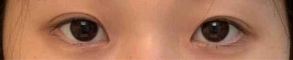 目の形が左右非対称です。 右目がつり目で左目がたれ目です。 つり目側の方が二重幅が広いのも差が分かりやすくなってしまう原因だと思います。 どうすればいいでしょうか、、、涙 左右非対称を和らげるメイクやマッサージ、整形の種類(?)があれば教えてください!!!