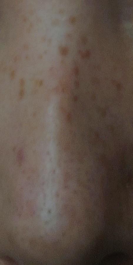 鼻周りの肌荒れについてです。 画像の様にかなり汚れているといいますか、荒れています。美白とまではいかなくても、せめてこの汚れ部分を落としたいなぁと思って、色々化粧水など調べてますが、これ!というのが見つからないです。あまり美容に関する知識がないというのもありますが、もしこういう荒れに効果のある化粧品などありましたら、教えて頂けると嬉しいです。よろしくお願いします。