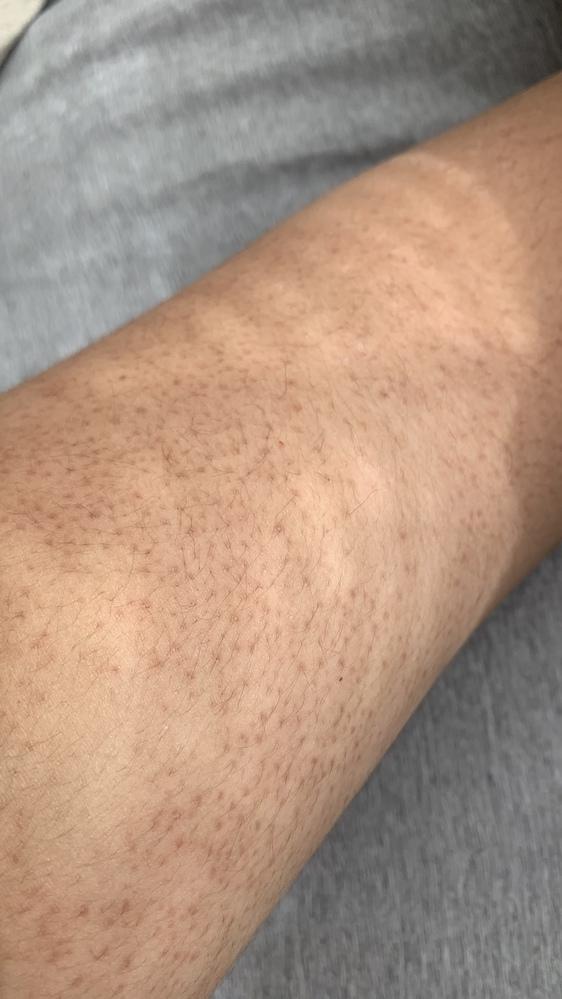 腕が小学校高学年ぐらいからこうなってるんですけど、皮膚科とかで診察してもらったら治りますか?今は19歳です