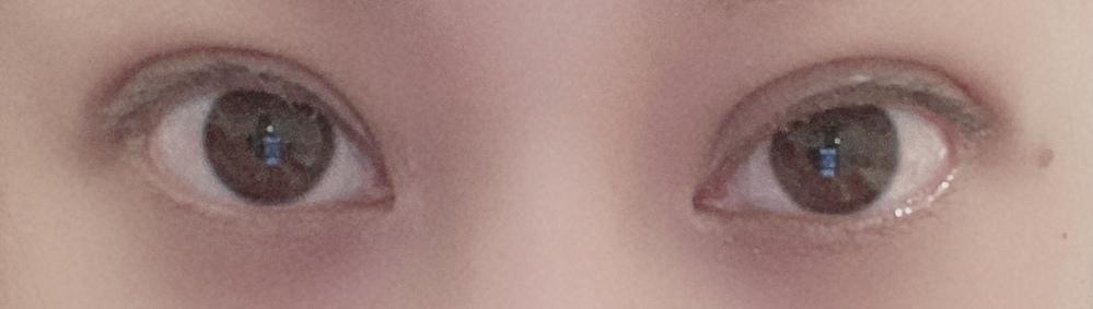 埋没9日目です。 左右差が気になります。 目頭のほうが目尻より太めの幅になっています。 これは失敗でしょうか。 オペの際、医師に目頭に麻酔が多めに入ったので腫れたとは言われました。(ノд・。)
