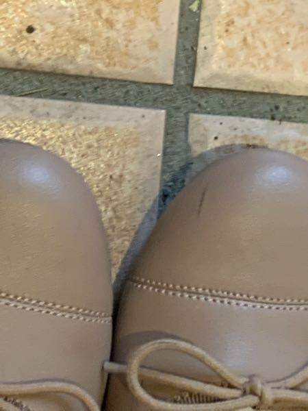 パンプスに黒い擦り傷が出来てしまいました、素材は合成皮革です これ何かで消えますか…?