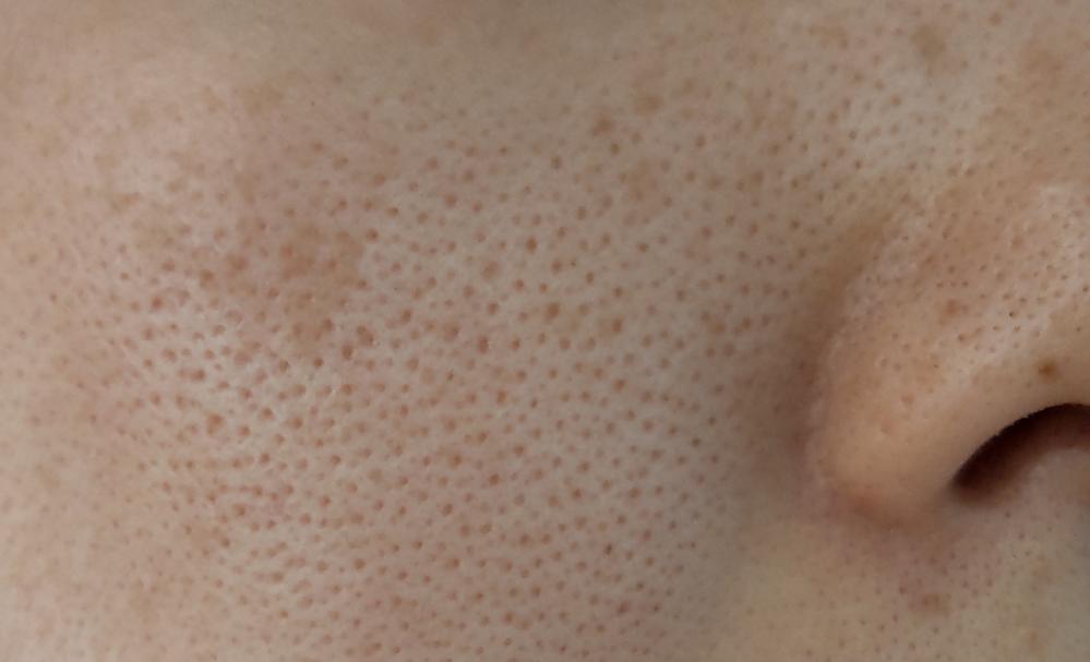 汚い肌をすみません。30歳に突入しますます肌の毛穴がひどくなりました。 ここ一年半くらいはセルフダーマローラーを月2回、炭酸パックとシートパックを週2回くらいしてますが、良くなった感じがしません。 肌質はもともと脂性肌で中学生くらいから毛穴が開いてました。(遺伝体質)20代後半から特に目元に乾燥を感じるようになりました。 美容皮膚科はシミやホクロ取りに行ったことがあるくらいです。 セルフでできる毛穴ケア、美容皮膚科で毛穴に効果があるもの等ありましたら、教えてください。 食事には気をつけて間食を控えバランスよく摂っています。