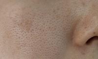 汚い肌をすみません。30歳に突入しますます肌の毛穴がひどくなりました。 ここ一年半くらいはセルフダーマローラーを月2回、炭酸パックとシートパックを週2回くらいしてますが、良くなった感じがしません。 肌質はもともと脂性肌で中学生くらいから毛穴が開いてました。(遺伝体質)20代後半から特に目元に乾燥を感じるようになりました。 美容皮膚科はシミやホクロ取りに行ったことがあるくらいです。 セルフでで...