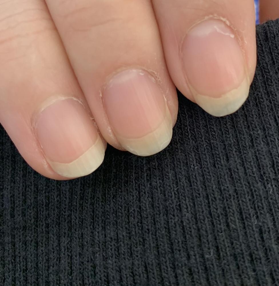 爪のピンクの部分が昔から短いです。 伸ばす方法はありますか?? あと、爪の上の白い部分がボコボコというか綺麗なラインじゃありません。(写真の左右の爪のように)原因はありますか?