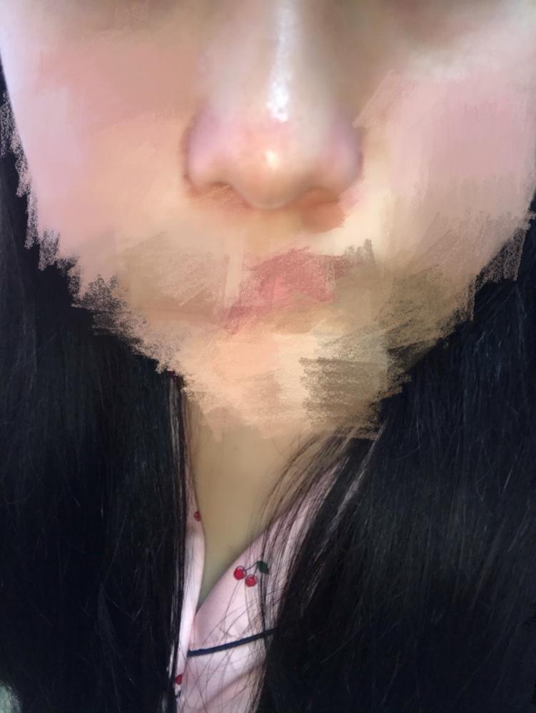 この鼻って何鼻ですか?