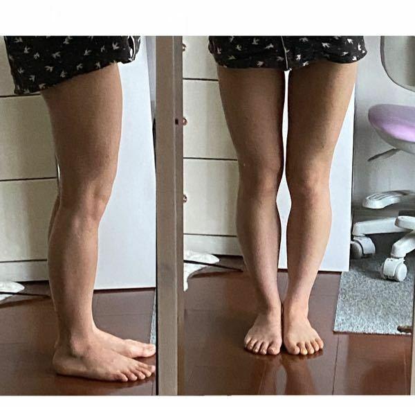 どんな脚やせがいいと思いますか? まっすぐな足になりたいです 身長147 41キロです BMI19くらい 全身痩せをしないと脚は痩せないのでしょうか