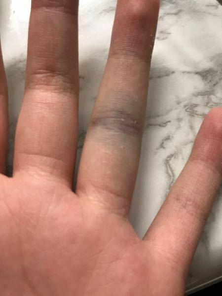 昨日友達とバレーボールをしたら突き指をしてしまいました。 風に当たるだけでも痛いです。 これは骨折でしょうか…。それともただの突き指ですか?