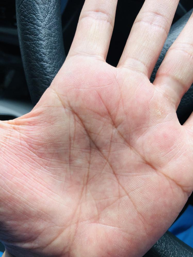 友達に言われたのですが、これってM字の線ですか? 両手にあるんですが分かる方教えてください!