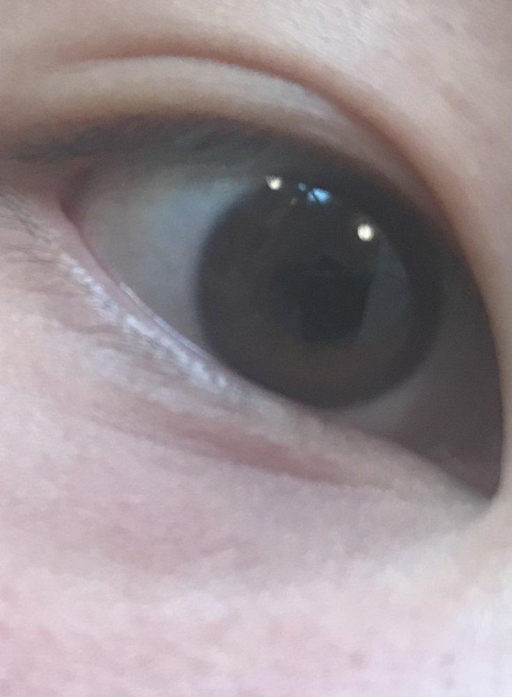 この目の形って何型って言うんですか? もっとくっきりな二重にしたいんですけどやっぱ整形ぐらいしかないですかね?