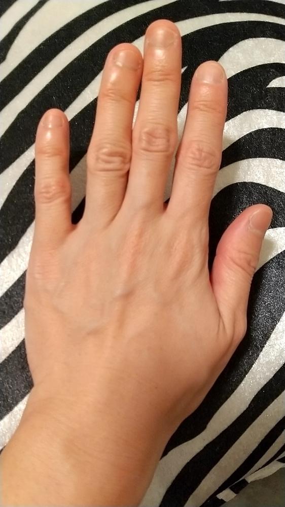 結婚する事になりましたが 指輪の話になり、悩んでいます。 汚くて…… この手はどうですか? 太くて短い手、になるのでしょうか? どのような指輪ならつけてもおかしくないでしょうか…… 太さやデザインなど、アドバイスよろしくお願いしますm(_ _)m