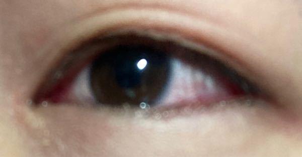はやり目で目が腫れたせいで、変な所に狭い二重が出来てしまいました まだ少し腫れてるんですけど、腫れが引いたら以前の二重に戻りますか?(上の薄い線が元の線です。)