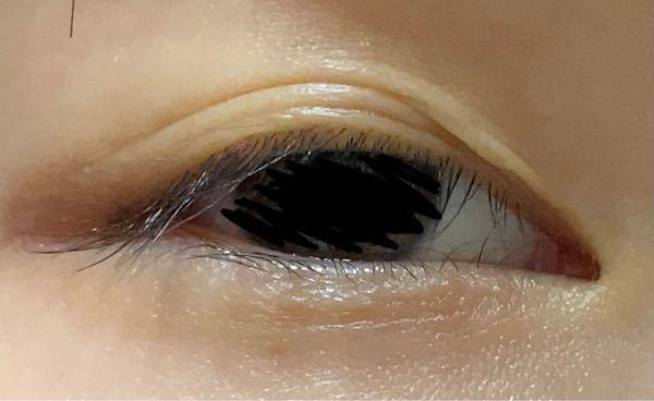 写真のように目頭の部分がアイプチや癖付けをずっと行っていたため変な風になってしまいました。 整形考えておりますが、この瞼でも整形できるのでしょうか?