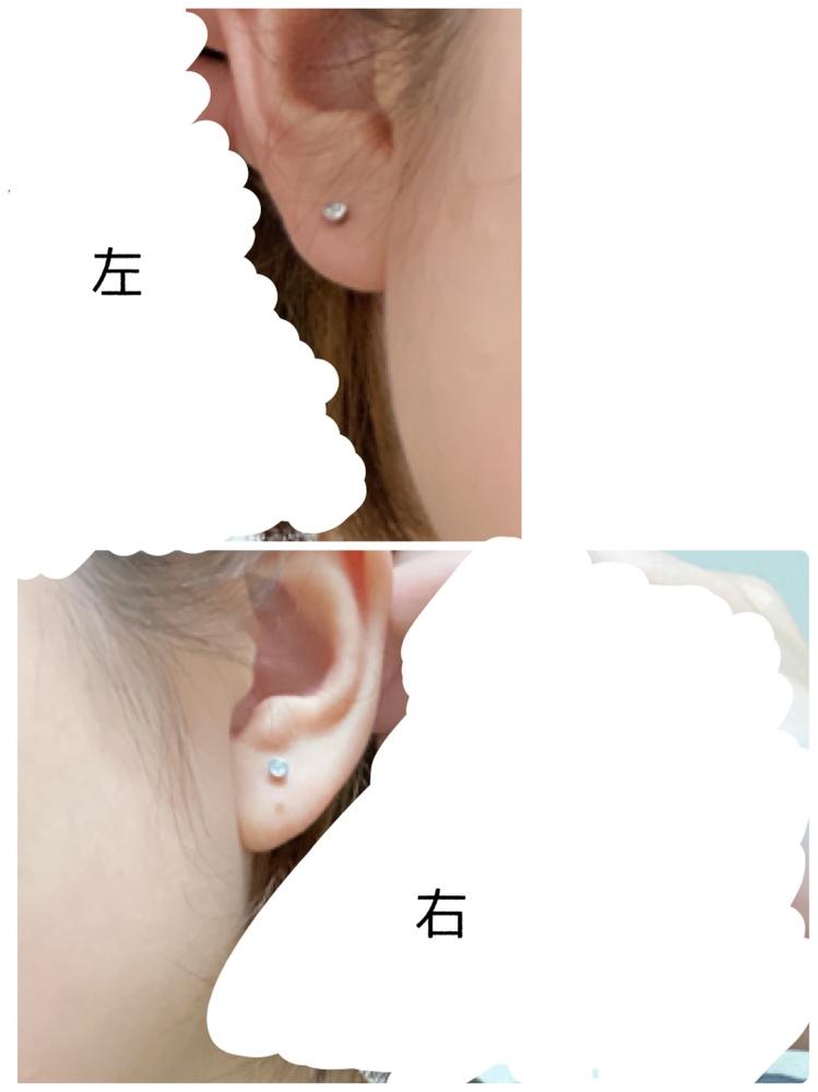 ピアスホールについて 左耳3連、右耳2連開けようかと思ってます。 左耳は今空いてるピアスホールの上と下に開けて、3連にしても位置的におかしくないでしょうか? 右耳はやや内側になってしまい、塞...