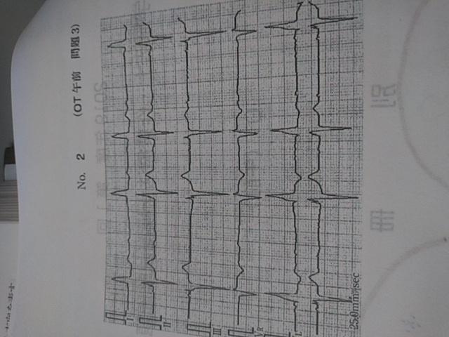 これは何故2度房室ブロックなのでしょうか? QRS波は抜けてないですし、そもそもP波が出現していないと思います。 補足 ウェンケンバッハとモビッツのどちらかも教えて頂けると助かります。