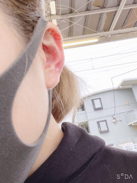 ピアスを開けて2ヶ月が経ちました。 今は透ピです。 耳たぶと斜め上を両耳に2個ずつ、計4個開けています。 耳たぶの方はつけている時は滅多に痛くならないのですが、斜め上の方は両耳とも後ろが腫れている感じがします。 また全ての穴にしこり?みたいなものがあり、付け替える時に刺しにくく痛みがあります。 血も出たり変な液体も出ます。 ピアスをつけて普通にしててもキャッチの方に 血と液体の塊が出来ます。←取れます 結構頻繁に痒みもあり心配です。 塞がないといけないのでしょうか。病院に行った方がいいですか?