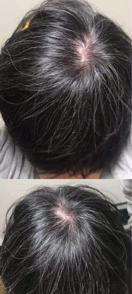 白髪の量で悩んでいます。 この白髪の量は何歳に見えますか?