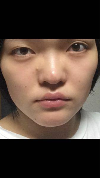 ※閲覧注意!!ドブスのすっぴん写真あり。 この顔はいくら位かけて整形すればマシな顔になると思いますか? どなたか教えてください。