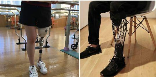 左の写真のような一般的な義足はよく見ますが、右の様なデザイナーが作ったような義足は実際見たことがありません。 右の様な義足は一般的なのと比べて高いんですかね? また、機能性が左の方がいいので右の様な義足はあまり見かけないのでしょうか?