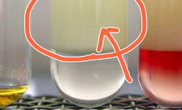 脂質の定性をしたのですが、この部分はなんですか? 大豆油と水を反応させたらこうなりました