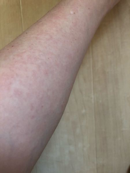 毎年夏このようなブツブツというか湿疹ができてしまいます。恐らく日光アレルギーというものなのか、ただ単に日焼け止めに荒れているのか。もし日光アレルギーの場合日焼け止め説実証のために使用を中止した場...
