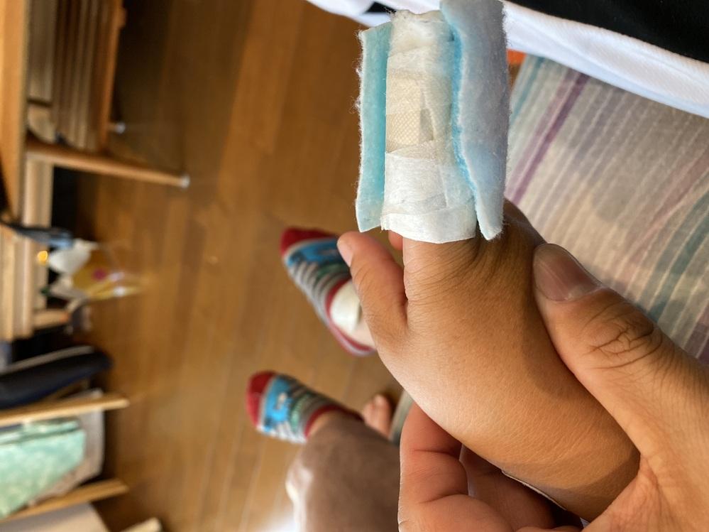 最初は挟んでしまって冷やす為に冷えピタを指に巻きました。1日経って、痛くもないのにずっと冷えピタを貼ります。 取ると大泣きしてワガママをいいます。二日目になります。このままにしていいんでしょうか? 年齢は4歳です。 指に巻いた冷えピタを外すと「痛い痛い」と言います。今は何枚も上に重ねて貼っており、冷蔵庫を勝手に開けて貼ります。やめさせる何か良い方法ありますか?