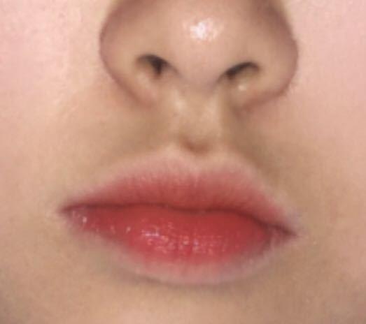 私の妹が、鼻の下が黒いことで悩んでいます。唇の影なのか黒ずみなのか.. 写真があるので、分かる方いたら教えてください。(閲覧注意?)
