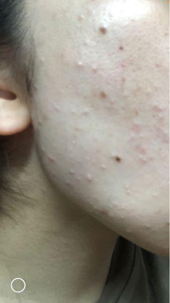 最近 、すっごい肌荒れがひどく スキンケアを見直しても良くなるどころか白いプツプツが増えてく一方で…(´;ω;`) おでこ付近は全然問題ないのですが、頬からフェイスラインにかけてこの白いプツプツが出てきて毎日 どうしようかと悩んでます(。• ︿• 。) 皮膚科の薬を塗っても全然効かないのでひとまず 皮膚科の薬は塗っておらず 化粧水とメラノCCと乳液とパックはしてます。無理に治そうと色んなものを 顔に塗ってるからかな、 この白いプツプツ治す方法どなたか教えてください お願いします(´×ω×`)