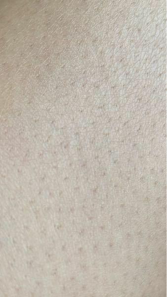 [閲覧注意] 毛を剃ったら毛穴がやばいです。どうしたら治りますか?