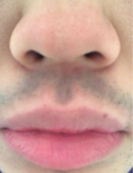 鼻と口と青髭がコンプレックスです。 もう諦めるしかないのでしょうか…