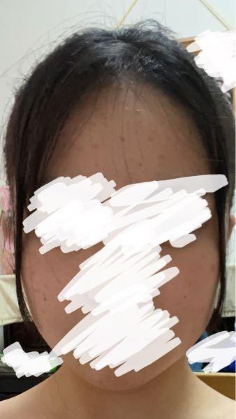 顔の形についてです。(写真あります) これはやはり面長ですか?? 私はずっと自分のことを丸顔だと思って生きてきたので出来れば丸顔であって欲しいのですが、写真を撮る時自分を鏡で見る時よりも頭が長くなります。なのでやはり面長なのかなと思いました。。 たくさんの方の意見をお聞きしたいです。、