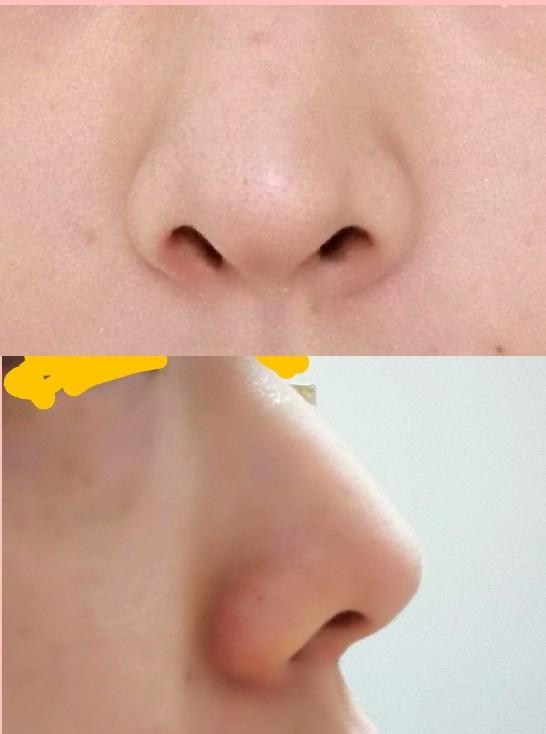私の鼻おかしいですよね? 私の鼻(正面と真横から)の写真です。ご覧のとおり、鼻の穴が斜め上に向かってかなり広がっています。鼻の穴も大きくて、顔とか洗ってると指がズボッと入ります。 写真を撮っても、普通の人よりも鼻の穴がすごく見えやすくて…昔からコンプレックスです。小さい鼻や、下を向いた鼻の穴に憧れます。 周りの人に、鼻を馬鹿にされたこともたくさんあるのですが、やっぱり皆さんこの鼻を見た瞬間ドン引きしますか?変だなぁとか嫌だなぁって思いますか? あと鼻の形を変えるには整形以外では何もないと思うんですけど…もし何か方法があれば教えて頂きたいです。