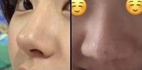 鼻の整形について。  鼻の整形をしたいです。 鼻先をシュッとさせて、横幅を狭くして 全体的に鼻を細くさせたいです。 左の写真のようになりたいです。 鼻の高さはそのままです。  このくらいだと目安でいいので、どのくらいの費用がかかるでしょうか。 本当に目安でいいので、最低と最高を教えて頂けると嬉しいです。  よろしくお願いします。
