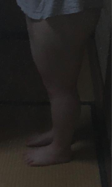 脚が太すぎて辛いです 脂肪も多少あるかもしれませんが筋肉が生まれつき多くてガチガチです ふくらはぎ37cm、太もも58cmです とりあえず内太ももを鍛えてます 他に脚痩せのダイエット、筋トレ、マッサージがあったら教えてください