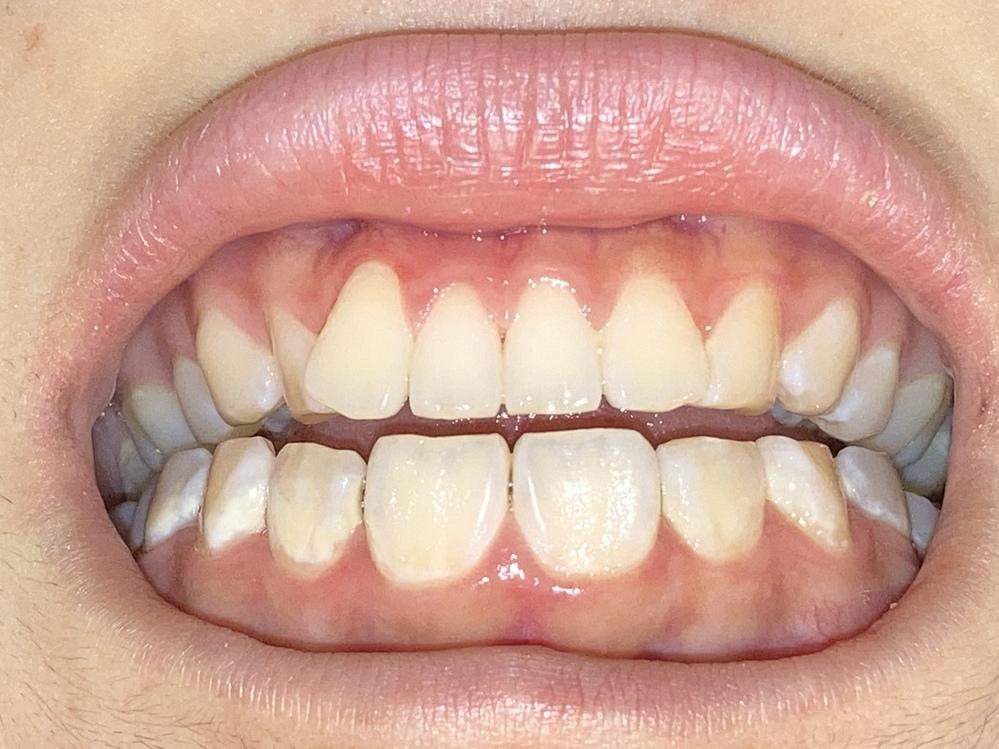摂食障害です。 一年ほどほぼ毎日吐き続けています。 この歯はかなり溶けてますか? 明らかに虫歯が沢山あって隙間が広がってきてるし、元々の歯は先端がジャキジャキ?してたのにそれがなくなった気がし...