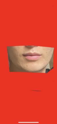 口周りのたるみ?改善したくてハイフを検討しているのですがこの口元にハイフは効果ありますでしょうか? 口周りのたるみを改善してフェイスラインをシュッとさせたいです。