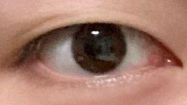 この目は二重整形を受けたらマシになると思いますか? アイプチなどは肌が弱くて使えません。