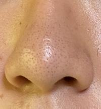 ※閲覧注意です。 鼻の黒ずみが全く消えません。 私は高校生なのですが、小学生の頃からずっと鼻の黒ずみに悩まされています。 皮膚科に行ってみても無理だと言われ、話題の酵素パウダーの洗顔を行ってもだめ。 ビオレの毛穴ケアのジェルを使ってもダメ。 手強すぎて私だけではもはや限界です。 最近流行りのDuoの黒を使ってみようかと考えているところです。Duoの効果や、他に良い方法があれば教えてく...