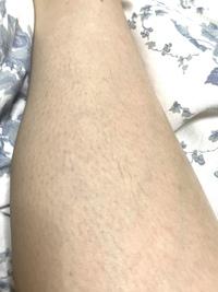 医療脱毛の照射漏れについて   脱毛中で、足は2回目を終えて1ヶ月が経ちました。  お目汚し失礼しますが、現在の右足(脛)の写真です。 このように一部 密集して毛が生えております。(脱毛後、一度も剃っておりません)   こちらは照射漏れによるものなのでしょうか?毛周期の関係でしょうか?    よろしくお願いします。