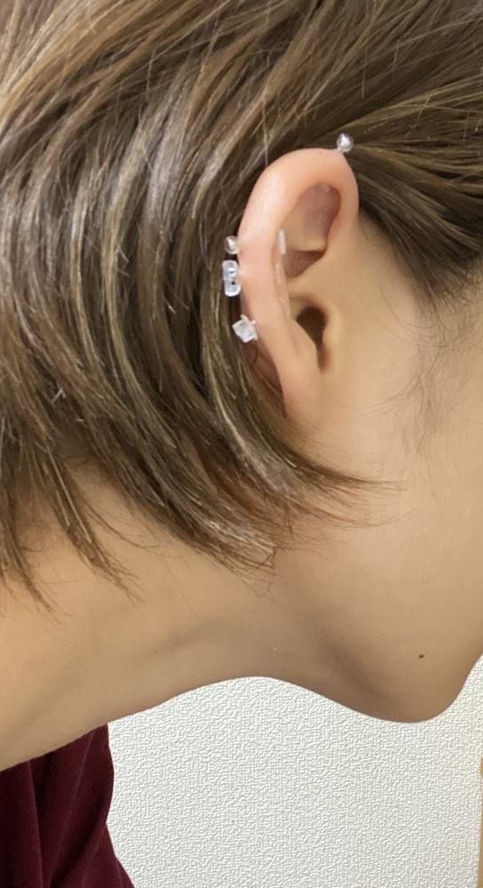 インダストリアル、ヘリックスを開けてもうすぐ3週間経ちます。 枕が触れたりすると痛みがありますが、日常生活での痛みや熱を持っているなどはありません。 耳の後ろ側のホールとインダストリアルの上側のホールのところが出っ張っていてこれは肉芽なのかな?と思っているのですが自分ではよく分からず…。 +gelってやつをお風呂に入る前にピアスにつけてピアスを動かしその後洗い流してます。出てきたら軟膏を塗っています。 ピアスを動かした時、痛みなどは有りません。 ただ、今日朝起きたら、一番上のインダストリアルの上側に血が乾いた様な物が付いてました。 カサカサに乾いていて綿棒で触ったらポロッと落ちて、その後体液なども見ていません。 肉芽なのか、ただホールが完成しておらず腫れてるだけなのか。 意見お願いします。 また、もう一つピアスに関しての質問があります。別に投稿するのでもし良かったらそちらにも意見を頂きたいです。