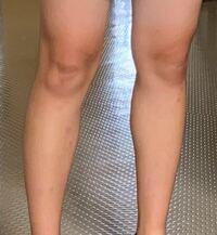 至急です  ※傷や痣があり汚い画像です。すみません。  骨格診断をしたいのですが、私は太ももと膝の上にめちゃめちゃ筋肉と脂肪が付いています。 画質が悪くて本当に申し訳ないのですが、これは膝の骨が目立っている のか、それとも筋肉や脂肪で目立っているように見えるだけなのか、もしくはどちらでもないのか個人的な感想でいいので教えて頂きたいです。 あと、脚だけで見た時に骨格はストレートなのかナチュラル...