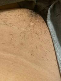 ルシアクリニックで一回目の医療脱毛から2週間が経過しましたが Vまだら I割れ目の際の部分 脇数本 すね毛表まばら VとIの境目はほとんど  に毛が残っています。引っ張っても抜けません。 これは照射漏れですか? 全部の毛が抜けてツルツル!にはならないのでしょうか 見苦しいですがVはこんな感じです。