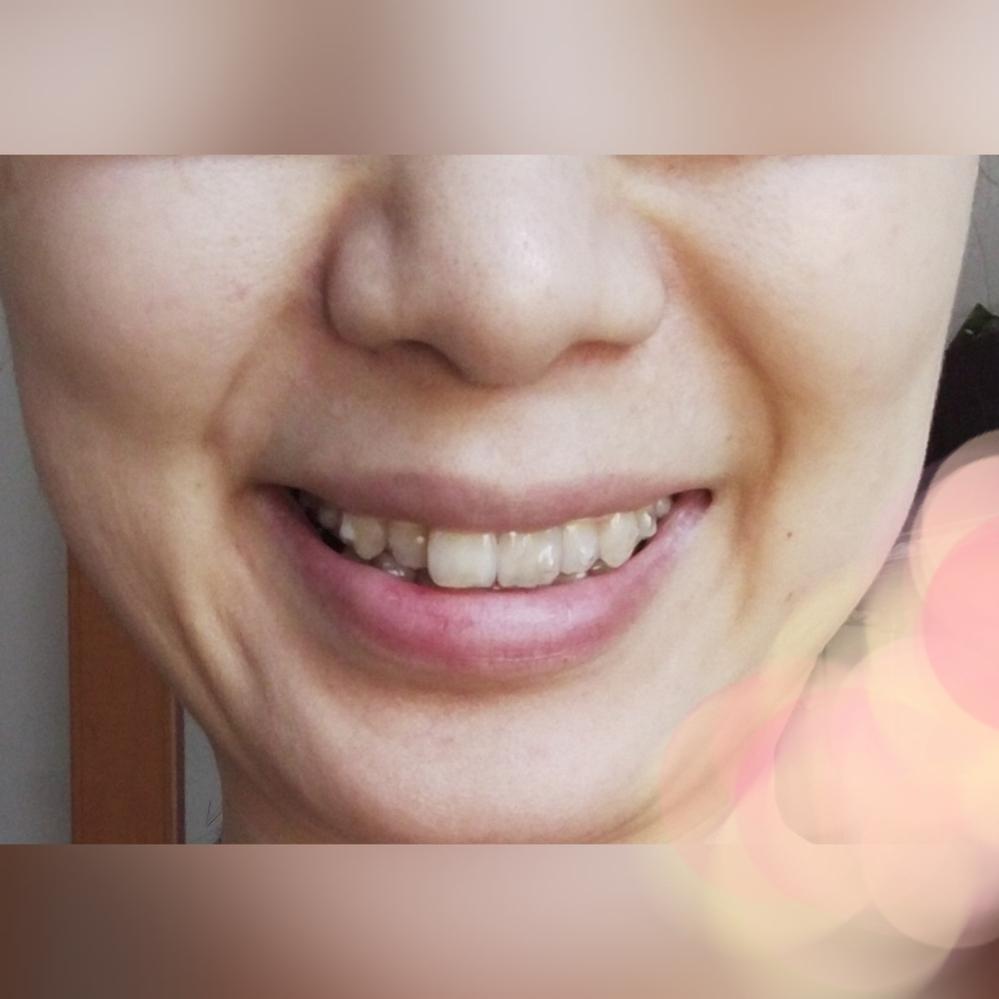 ほうれい線の左右差について。 写真ありです。 口角を上げて笑顔を作ったとき 左右でほうれい線の見え方が違います。 これは顔に左右差があるからですか? どうすれば左右差を少なくできるでしょうか?