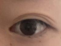 3ヶ月前に二重の埋没手術をしました。 どんどん二重の線が薄くなってきています。 今日朝起きるとこのように変な二重の線になっていました。今は元の二重に戻っていますが、もう取れかけている証拠なのでしょうか。別に瞼も分厚くないし、薄い方だと思うのですが、施術をしてくださった先生のせいなのでしょうか。