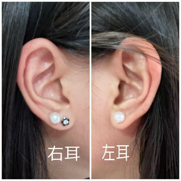 今右耳に2つ、左耳に1つピアスを開けています。 軟骨に開けたいと思っているのですが、私の耳の形などからどこがいいと思いますか?? どなたか教えてくださると嬉しいです( ; ; )