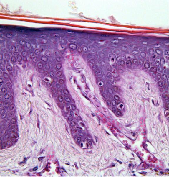 頭皮の表皮です 色素細胞って赤い点々ですか?