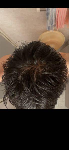 禿げてますか?