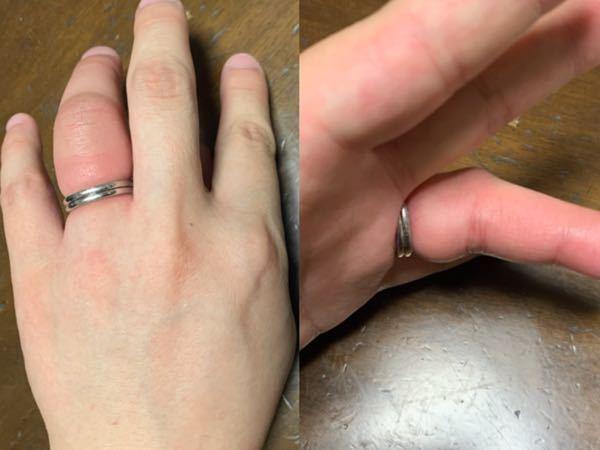 至急教えてください(T . T) 臨月の妊婦です。 指輪を付けたくなり付けたのですが 何をしても取れなくなってしまい 写真のように腫れ上がっている状態です 取れると言われている方法は一通り行い 糸