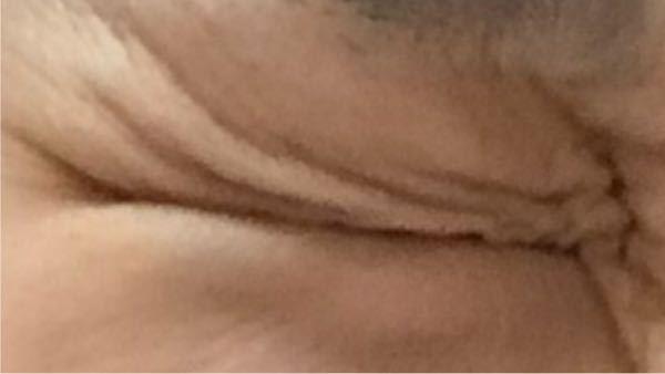 目をぎゅっとつぶった時のこの変なシワはどうすれば治りますか? 脂肪が多すぎなんですか? 整形が必要ですか?