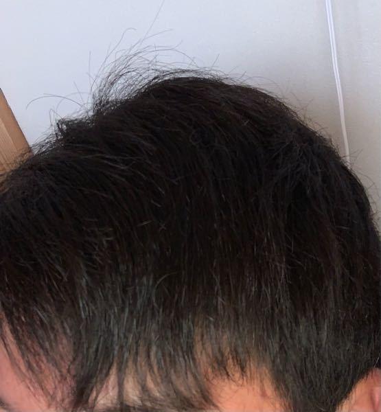 ボタニストのシャンプーを買う予定なんですが、この髪質に合った種類を教えて欲しいです